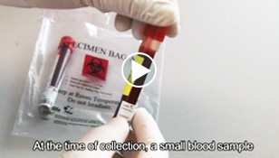 Cord Blood Collection process video